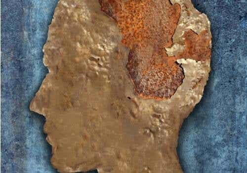 Encefalopatia spongiforme (la mucca pazza)