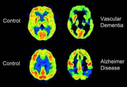Tomografie cerebrali.