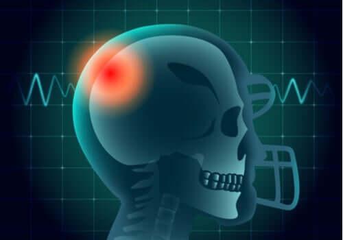 Testa di una persona con una zona di colore rosso.