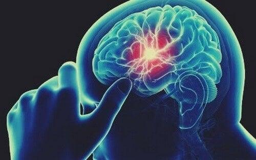 Deficit di vitamina B12 e disturbi cognitivi