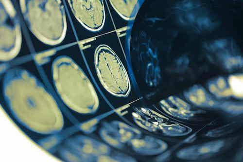 Radiografie del cervello.