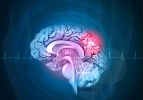 Effetto chemo brain: di cosa si tratta?