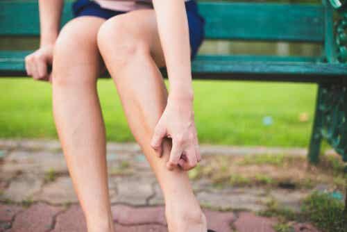 Donna che si gratta le gambe perché ha prurito.