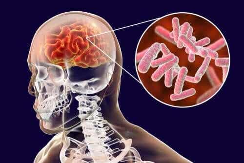 Infezioni cerebrali: classificazione e sintomi