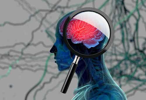 Infezione cerebrale.