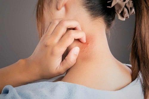 La neurodermatite sul collo.